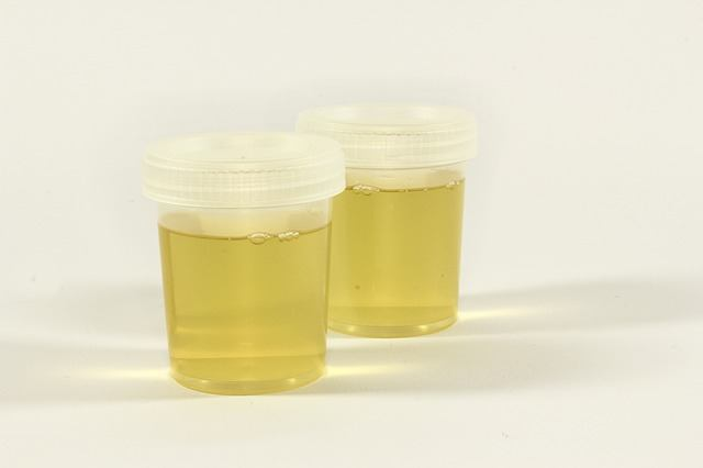 Can You Mix Water into a Urine Sample for a Drug Test